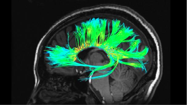 Diffusion Tensor Imaging (DTI