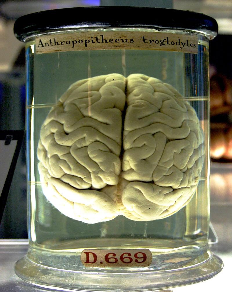 Brain Overview | Neuroscience