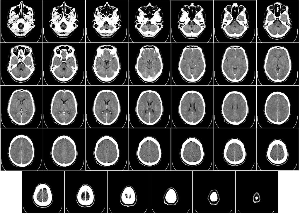 Human Brain Overview | Neuroscience